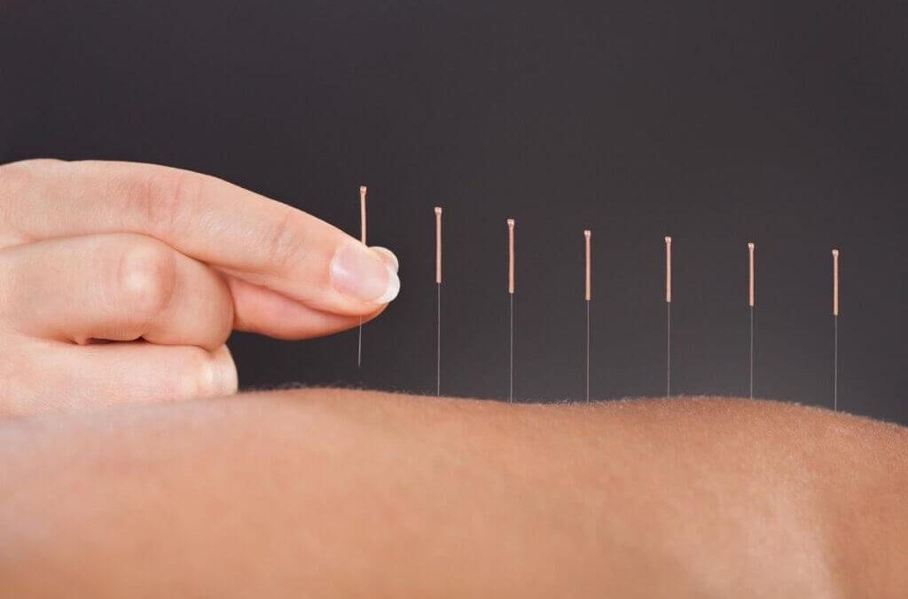 En quoi l'acupuncture est-elle efficace pour la perte de poids?