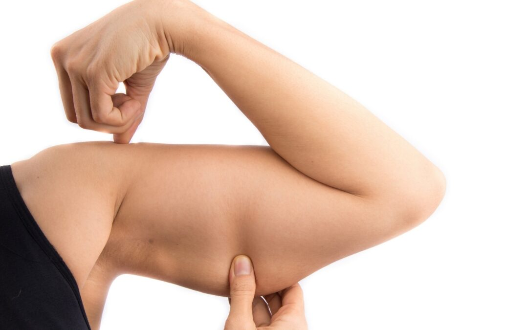 Cryolipolyse des bras : tout savoir